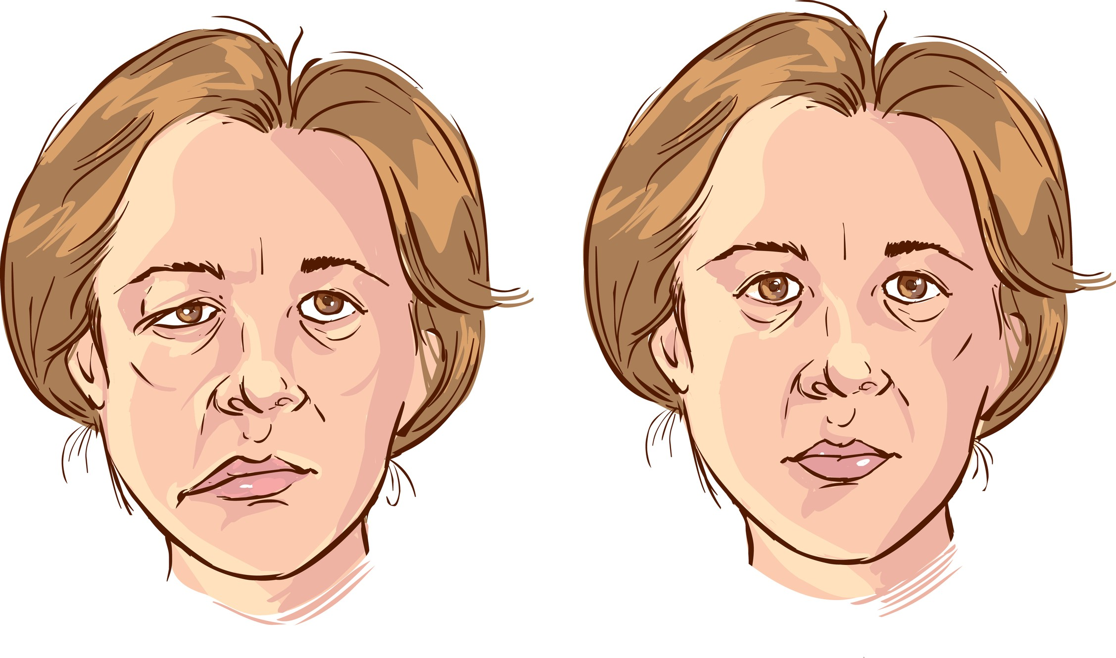 Acupuncture Treatment for Bell's Palsy