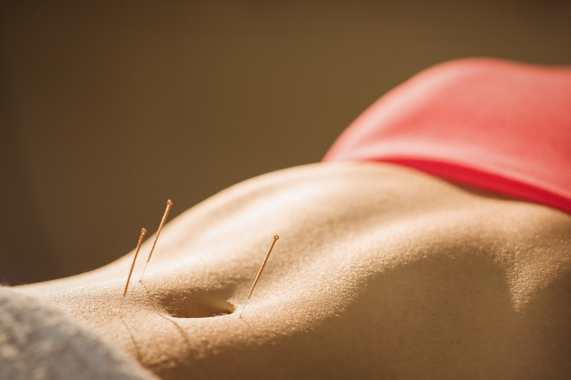 Acupuncuture for Women