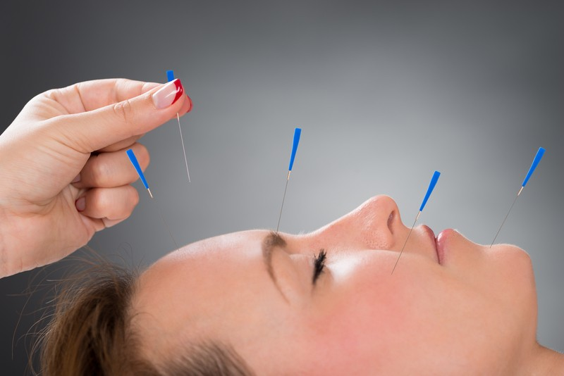 Top 10 Reasons Why Women Benefit From Acupuncture