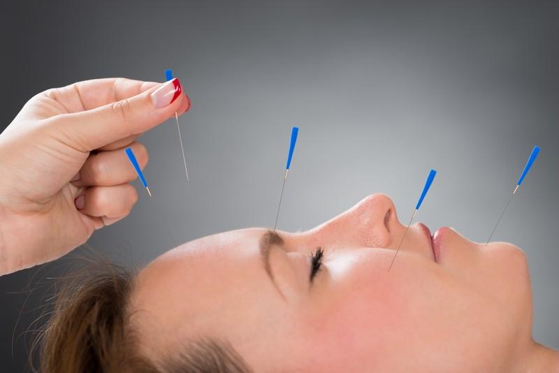 women acupuncture