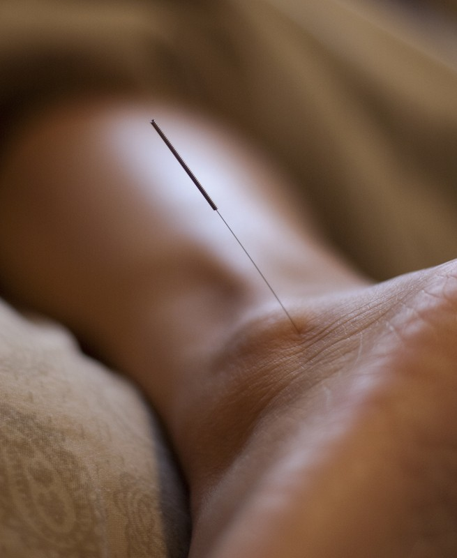 Can Acupuncture Help Runners with Recovery?