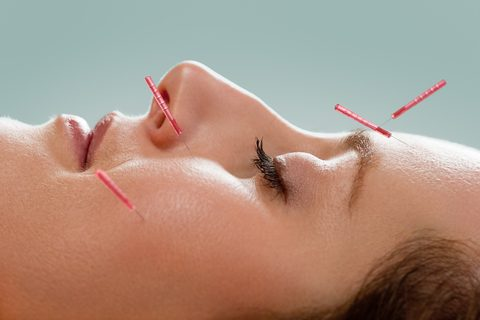 Acupuncture Points to Relief for Allergy Sufferers