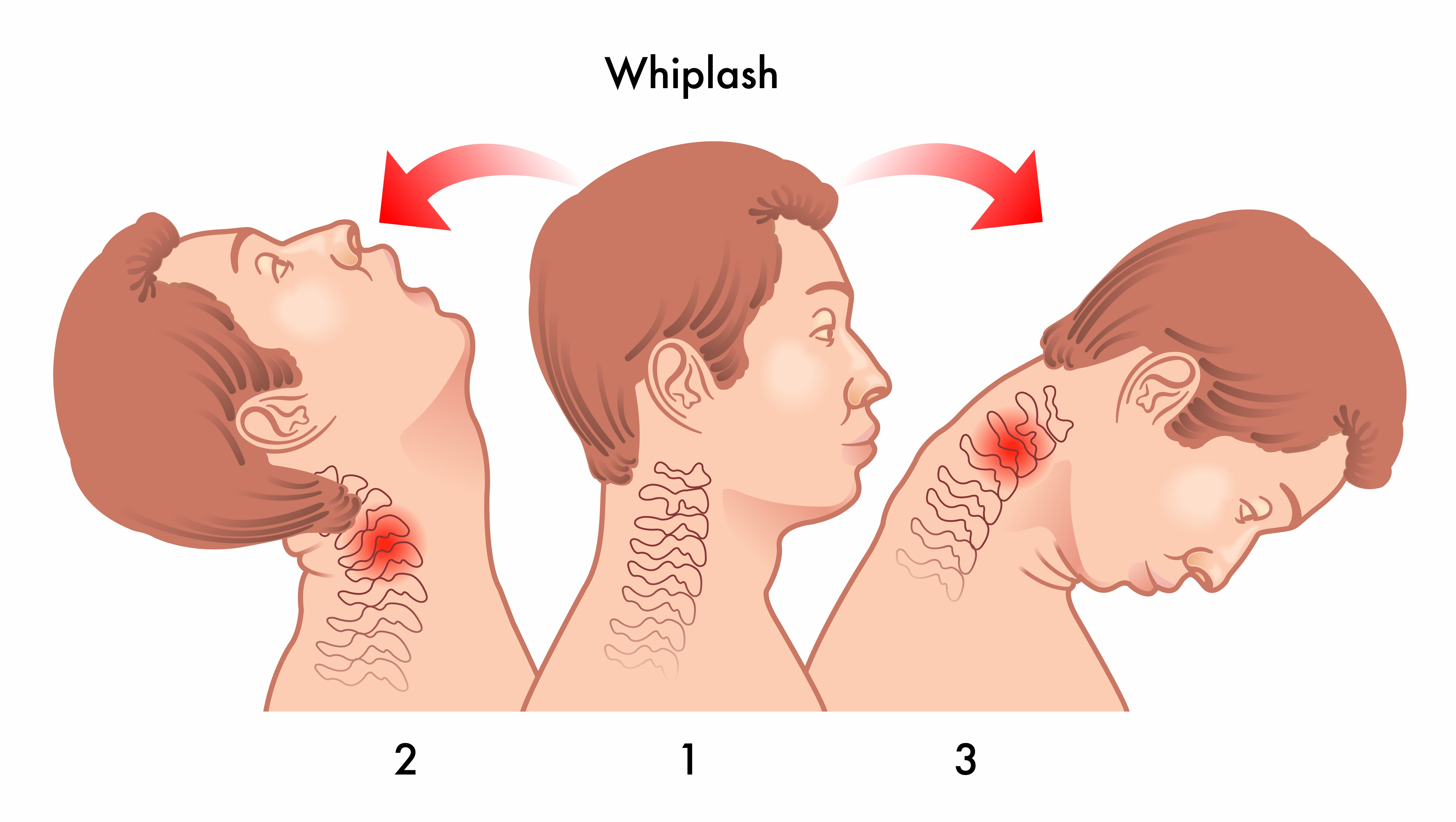 Illustration of whiplash
